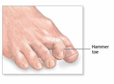 Best Fitting Shoes For Hammertoes